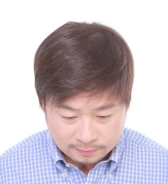全頂醫療用假髮3-1